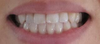 オーラパールで白くなった歯