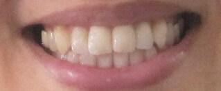 オーラパールを使用する前の歯