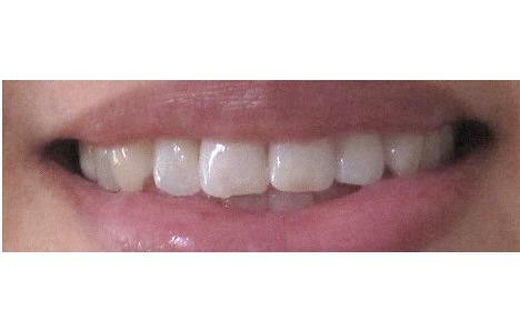 オーラパール 歯が白い画像