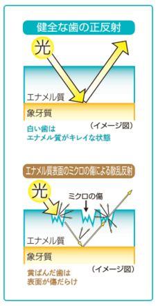 オーラパール 歯の黄ばむ原因