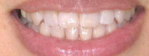 ホワイトニング歯みがき