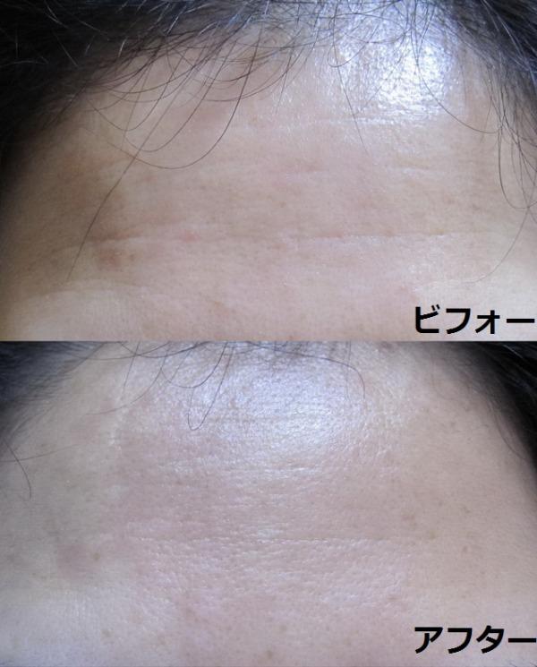 ヒアロディープパッチ 額への効果 使用前後画像