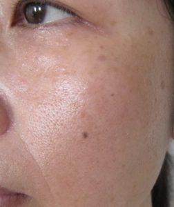 ポーラBA レッド+レブアップを使った1年後の肌