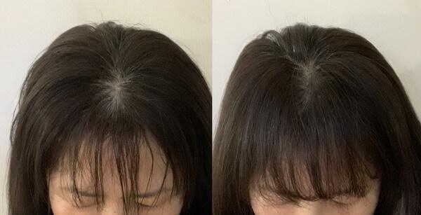 50代女性 頭頂部 薄い