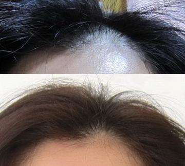 育毛剤の効果 50代女性