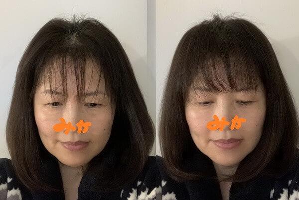 前髪薄い 女性 髪型