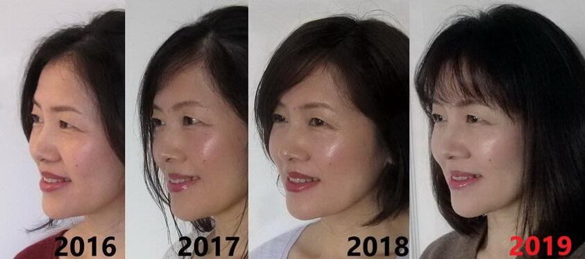 ポーラ使用後 毎年の顔変化