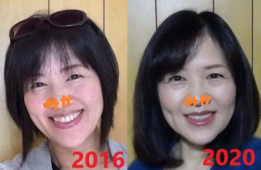 ポーラBAを使用した4年間の顔