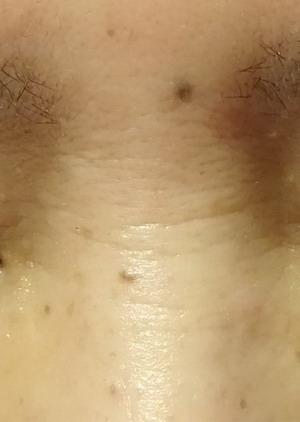 鼻のシワ 50代