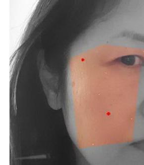 肌診断シミ